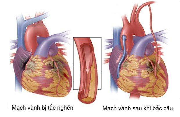 Phẫu thuật bắc cầu động mạch vành điều trị thiếu máu cơ tim